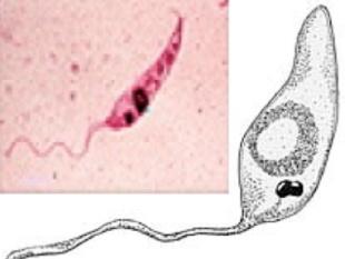 paraziti leishmaniaza ce viermi mici numesc