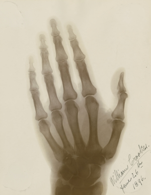 An early x-ray photograph of Sir William Crookes's hand