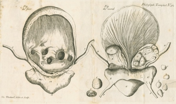 Two illustrations by Elizabeth Blackwell showing front and back views of the bladder of the late Mr Gardiner.