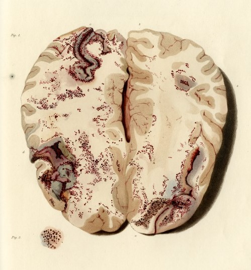 Plate 6 from 'Bright's Medical Reports: Diseases of the brain and Nervous System part 1' by Richard Bright (c) The Royal Society