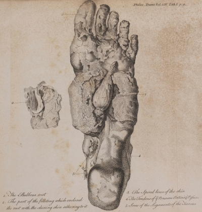 Drawing of the left foot of Norfolk's Mummy