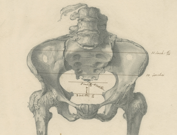 Drawing of the pelvis of Granville's mummy