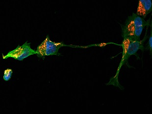 Neural stem cells. Copyright © the Cell Therapy Catapult Limited and ReNeuron Limited 2014.