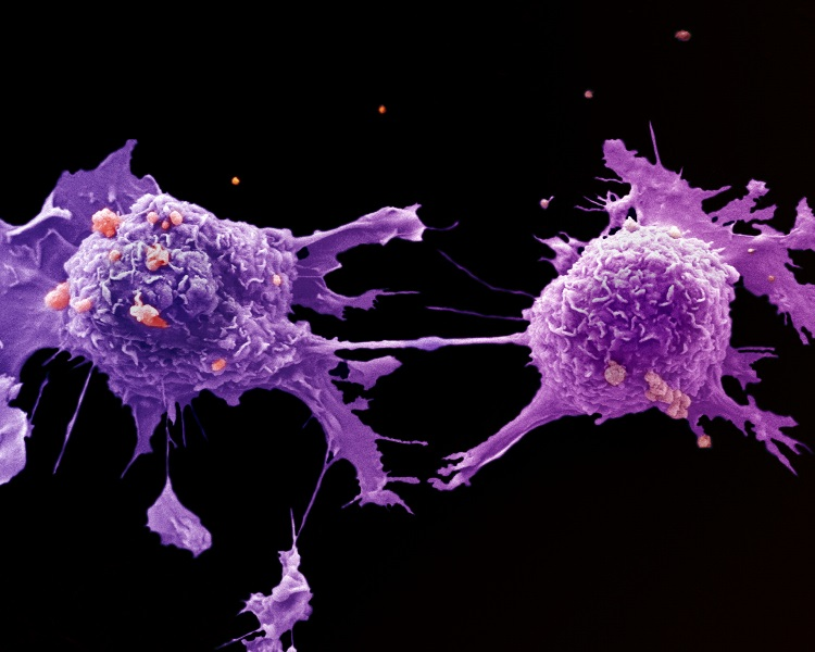 Lung cancer cells CRUK