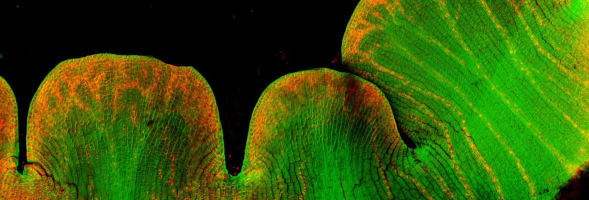Young petals under the microscope. Scientists use fluorescence microscopy to view patterns of gene activity (red cells are active). This demonstrates how cells can be 'polarised' to form distinct tissues. Credit: John Innes Centre