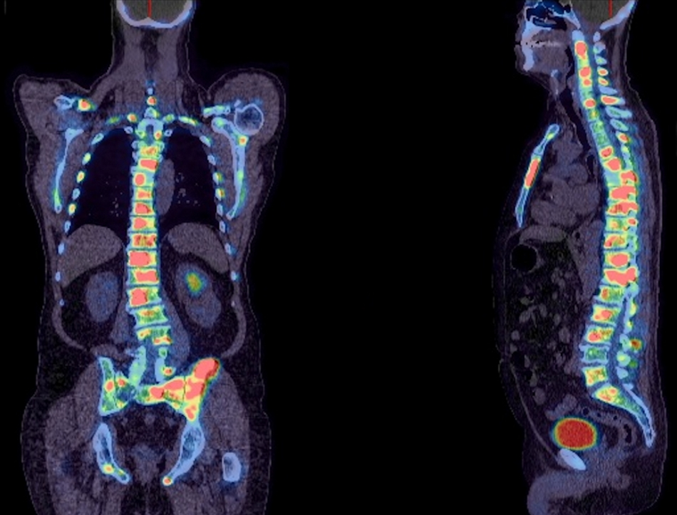 Whole body fused PET and CT image of a patient with prostate cancer. This image shows multiple areas of abnormal 18F-fluoride uptake throughout the skeleton (red and yellow spots) indicating spread of cancer to these sites. Whilst the extent of spread of cancer is large, the uptake would predict that this patient should respond well to a targeted radionuclide treatment such as 223-Radium Chloride.