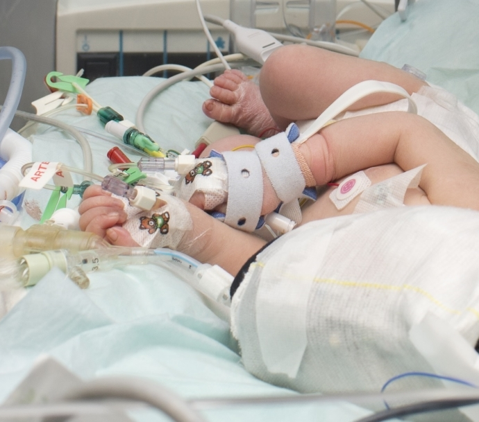 Picture of birth asphyxiated infant in Intensive Care Unit showing all monitoring cables and connections.