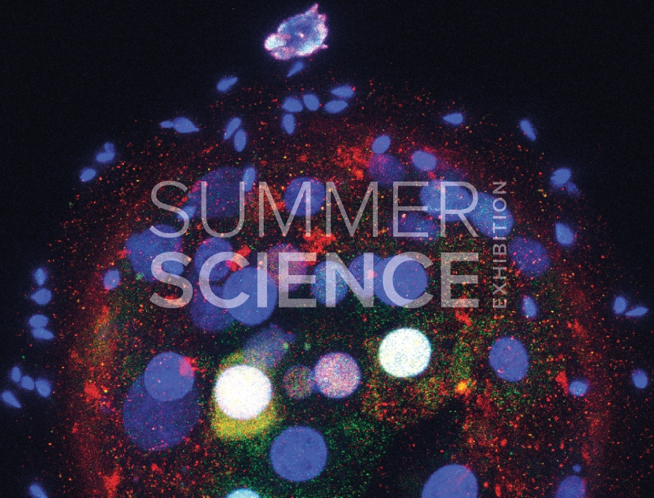 Summer Science Exhibition: fluorescent images showing different genes involved in early human embryos in different colours
