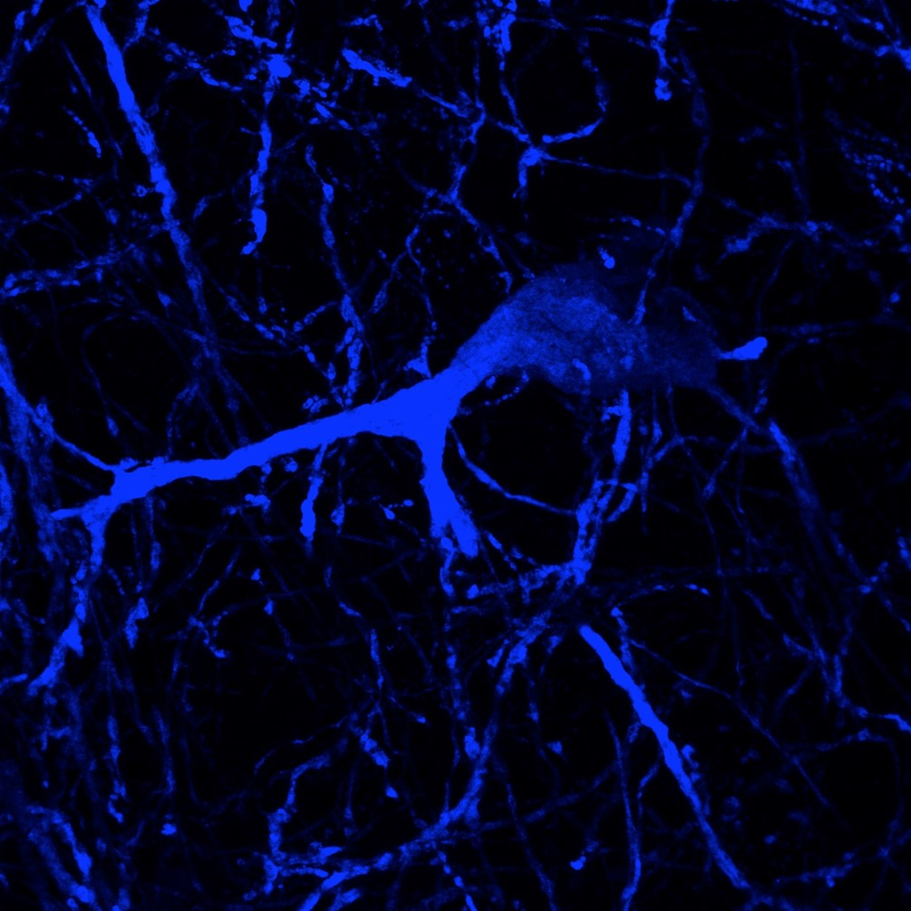 Dopaminergic neuron (Thomas McWilliams & Alan Prescott)