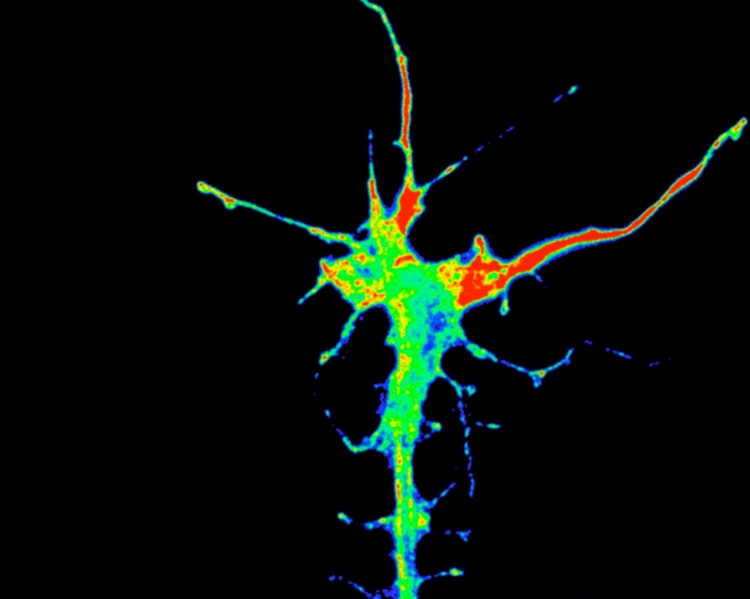 Growth cone (tip of growing axon) showing polarised mRNA translation (red) nearest to signal gradient on right. Credit K-M Leung