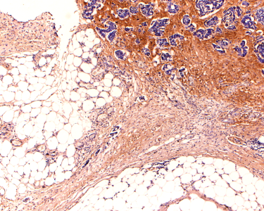 This is a microscope picture of an ovarian cancer biopsy. The brown stain is an extra-cellular matrix protein called versican that is only found in cancers not normal tissues. The blue cells are a mixture of cancer cells (they are generally larger) and normal cells that are recruited and often corrupted by the cancer cells to help them grow and spread.